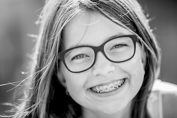 Preventative Orthodontic Treatment in Montréal